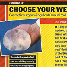 Choose your weapons. Cosmetic Surgeon Angelica Kavouni told us about implants